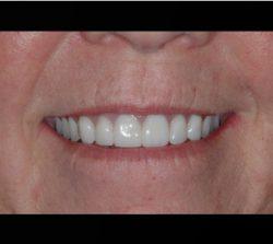 New Smile After Dental Implant