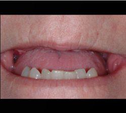 Smile Before Dental Implant