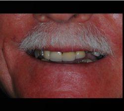 Success Stories of Dental Implants